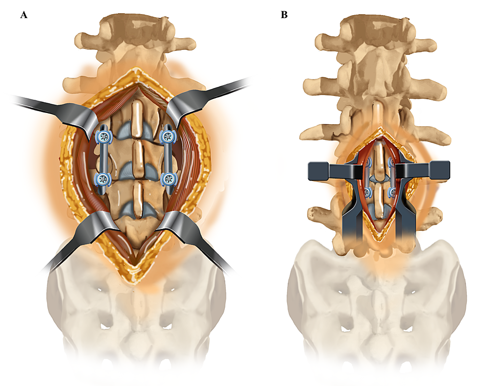 Soft-Tissue-Exposure-Required-for-One-Level-Lumbar-Fixation