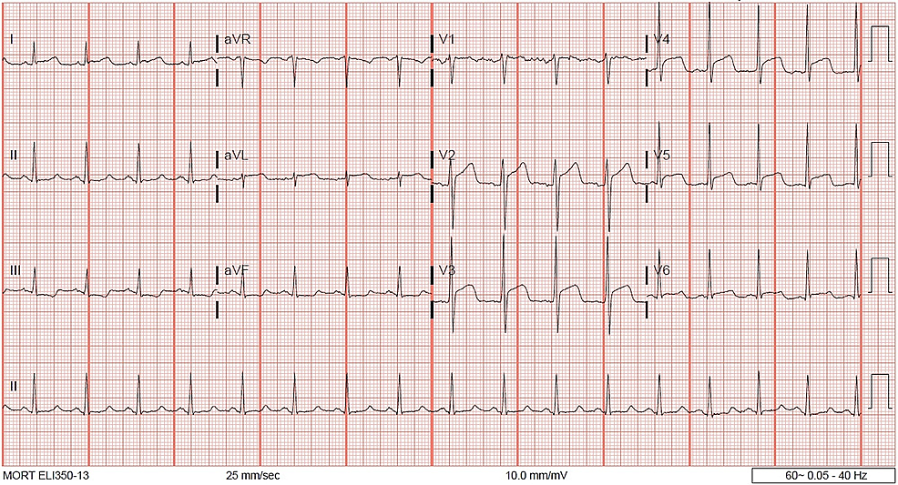 12-Lead-electrocardiogram-(ECG)-at-presentation-showing-ST-segment-elevation-in-anterolateral-leads.