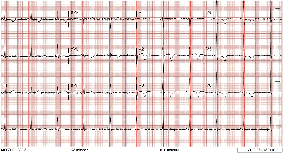 12-Lead-ECG-post-resolution-of-ST-segment-elevation,-with-new-T-wave-inversion-in-anterolateral-leads.