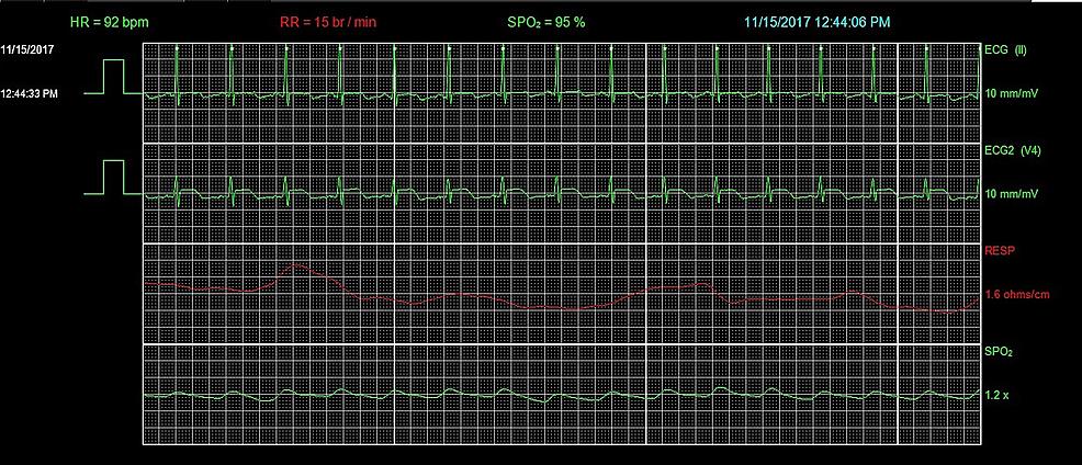 Telemetry-showing-ST-segment-elevation-in-Lead-V4.