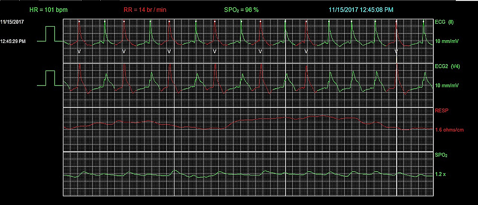 Telemetry-showing-accelerated-idioventricular-rhythm-(AIVR).