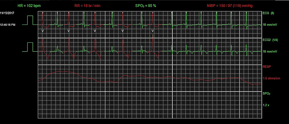 Telemetry-showing-resolution-of-AIVR.