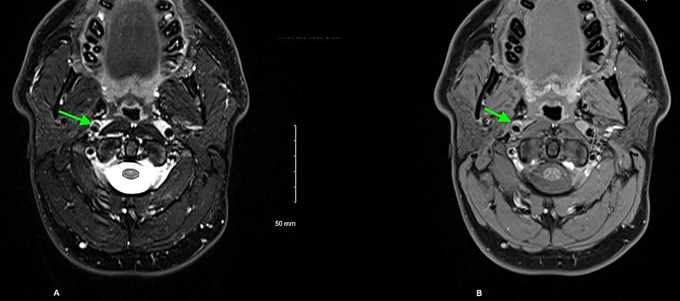 T1-axial-sections-of-MRI-neck-showing-a-double-lumen-abnormality-at-the-petrous-segment-of-the-right-internal-carotid-artery-(A)-and-heterogenous-signal-with-contrast-enhancement-(B)-suggesting-right-internal-carotid-artery-dissection