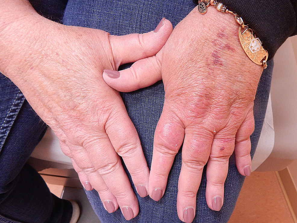 Erythema-and-edema-after-10-weeks-of-cyclosporine-therapy.