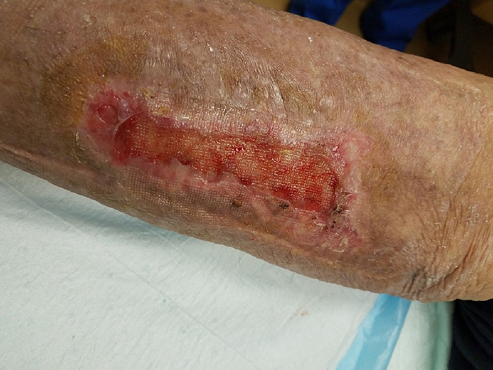 Wound-approximately-one-month-after-second-epidermal-harvesting-and-grafting-technique.