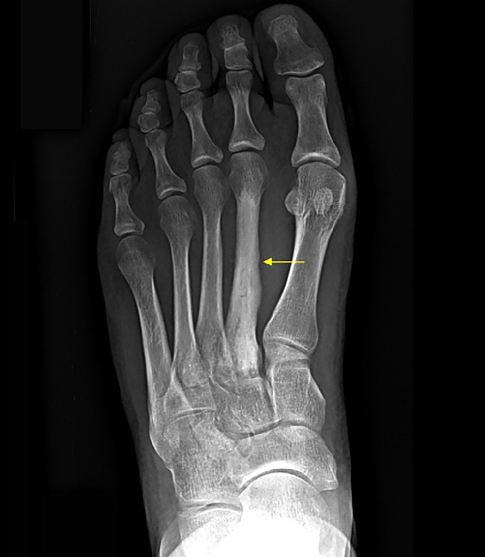 Pre-operative-X-ray-showing-cement-in-the-second-metatarsal.