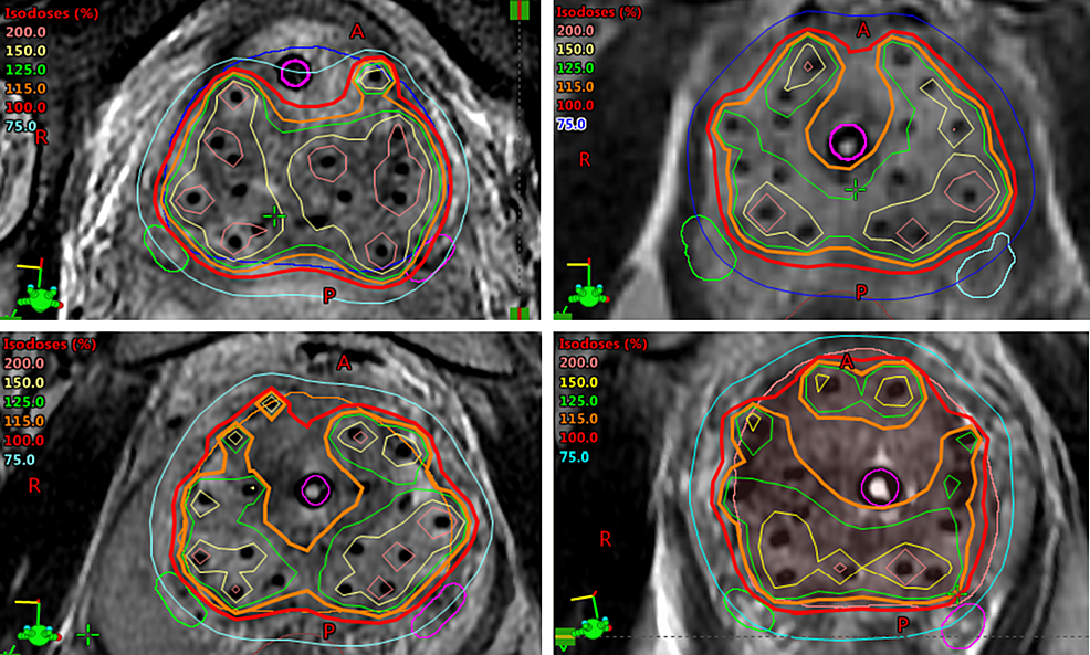 Examples-of-HDR-brachytherapy-dosimetry