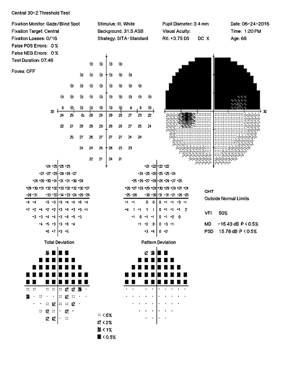Right-Eye-Visual-Field