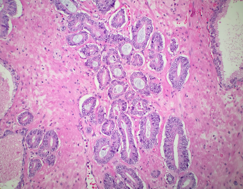 Microscopic-examination-of-prostate-biopsy-reveals-prostate-malignant-glands-with-Gleason-grade-6-pattern.