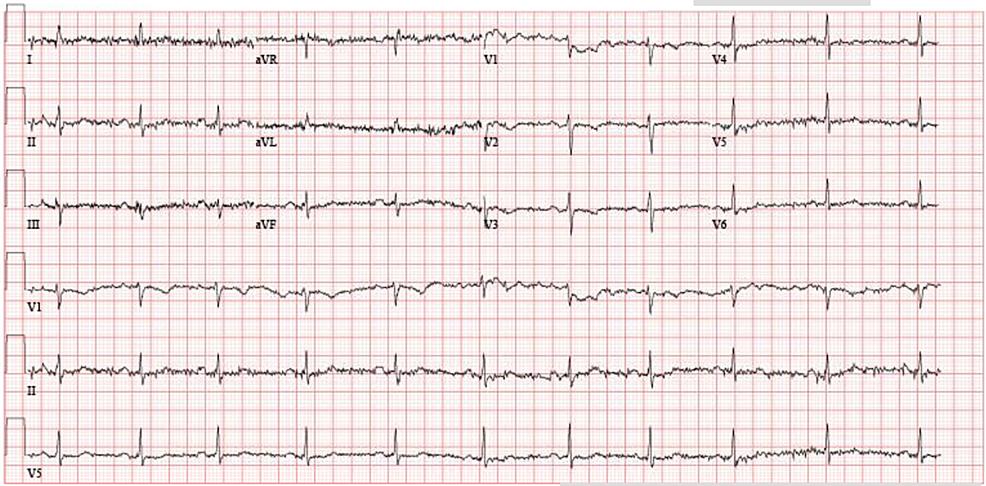 Image-of-electrocardiogram.