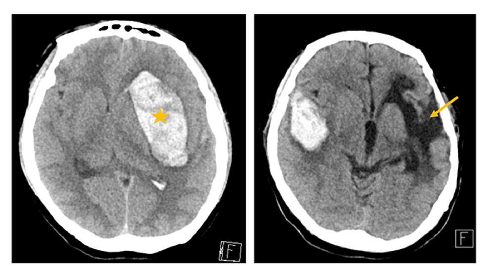 (Left)-First-hemorrhagic-stroke-on-the-left-hemisphere-(star).-(Right)-Right-temporal-hemorrhagic-stroke-with-surrounding-vasogenic-edema-with-left-sided-encephalomalacia-from-a-previous-hemorrhagic-stroke-(arrow).
