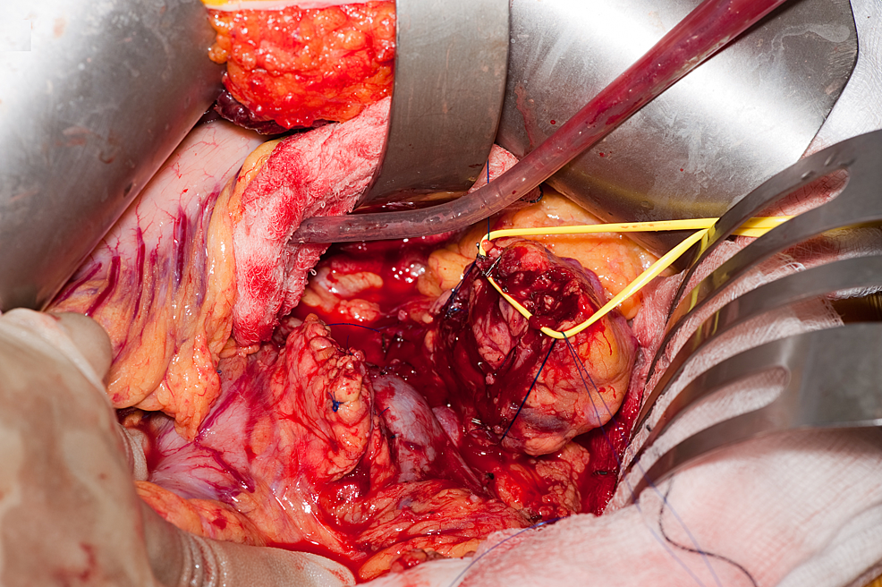 Open-central-pancreatectomy-using-the-CLASP-technique