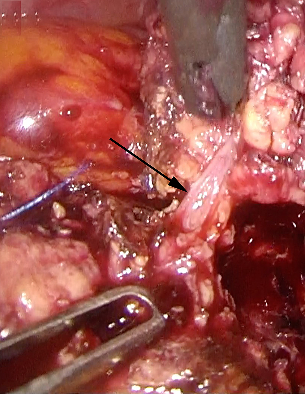 Laparoscopic-distal-pancreatectomy-using-the-CLASP-technique