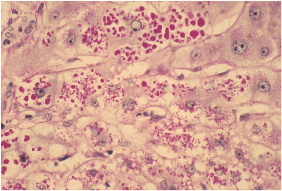 Liver-Biopsy-Photomicrograph