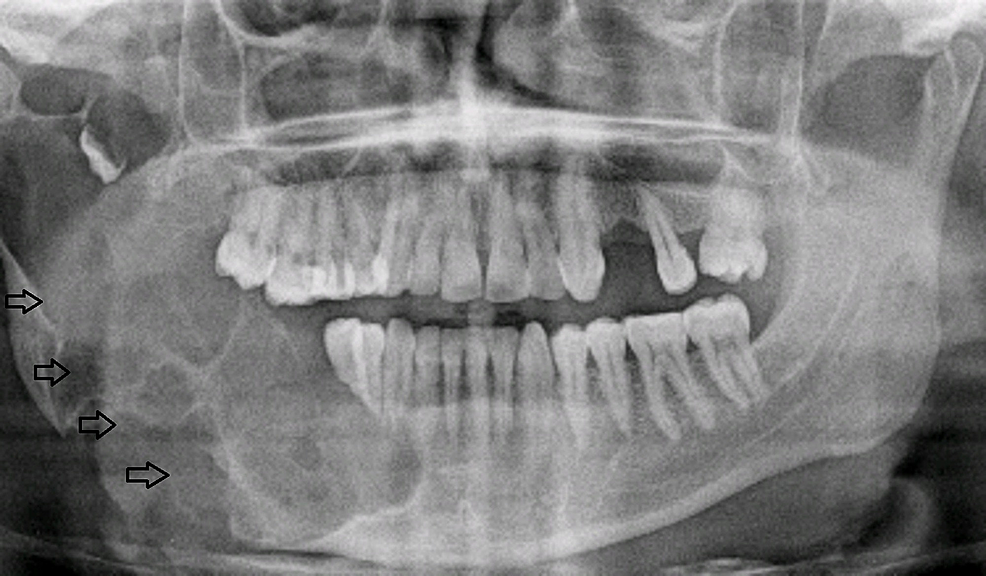 Patient-14.-A-38-year-old-male-with-right-sided-facial-swelling.-Preoperative-orthopantomogram-revealed-multilocular-lucencies-(arrows)-on-the-right-side.