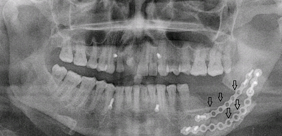 Patient-4.-A-55-year-old-male-with-left-sided-facial-swelling.-Postoperative-orthopantomogram-shows-reconstruction-of-mandible-with-plating-(arrows).