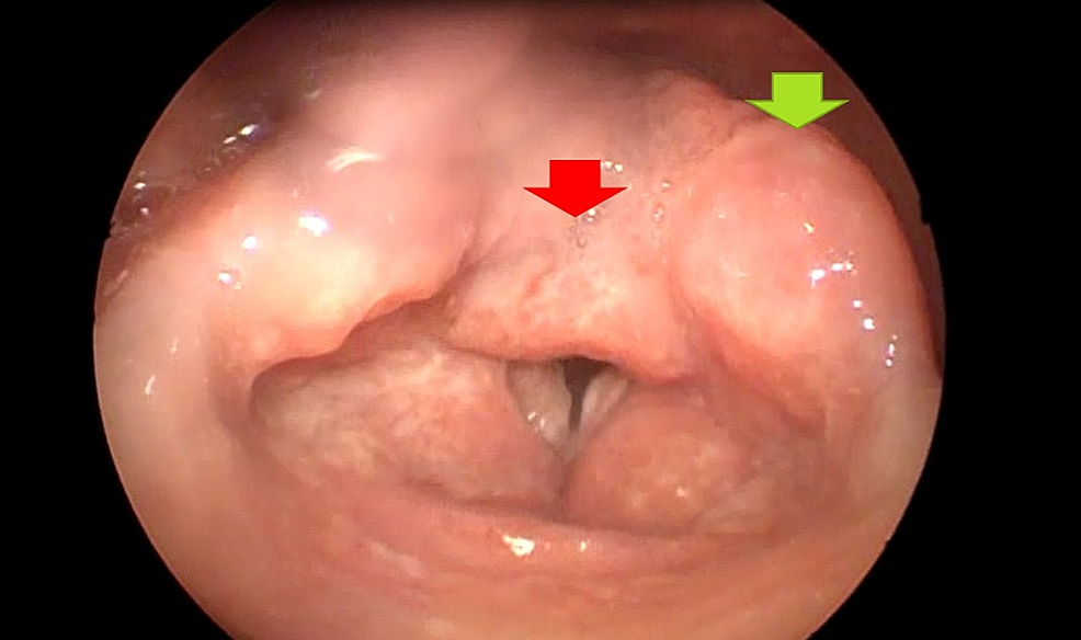 Mamelonated-laryngeal-tumoration-that-compromised-the-arytenoid-cartilage-(green-arrow)-and-the-interarytenoid-notch-(red-arrow)