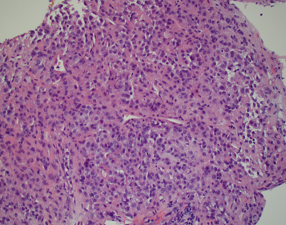 Light-microscopy-of-the-biopsied-specimen-showing-spindle-and-epithelioid-cell-neoplasm