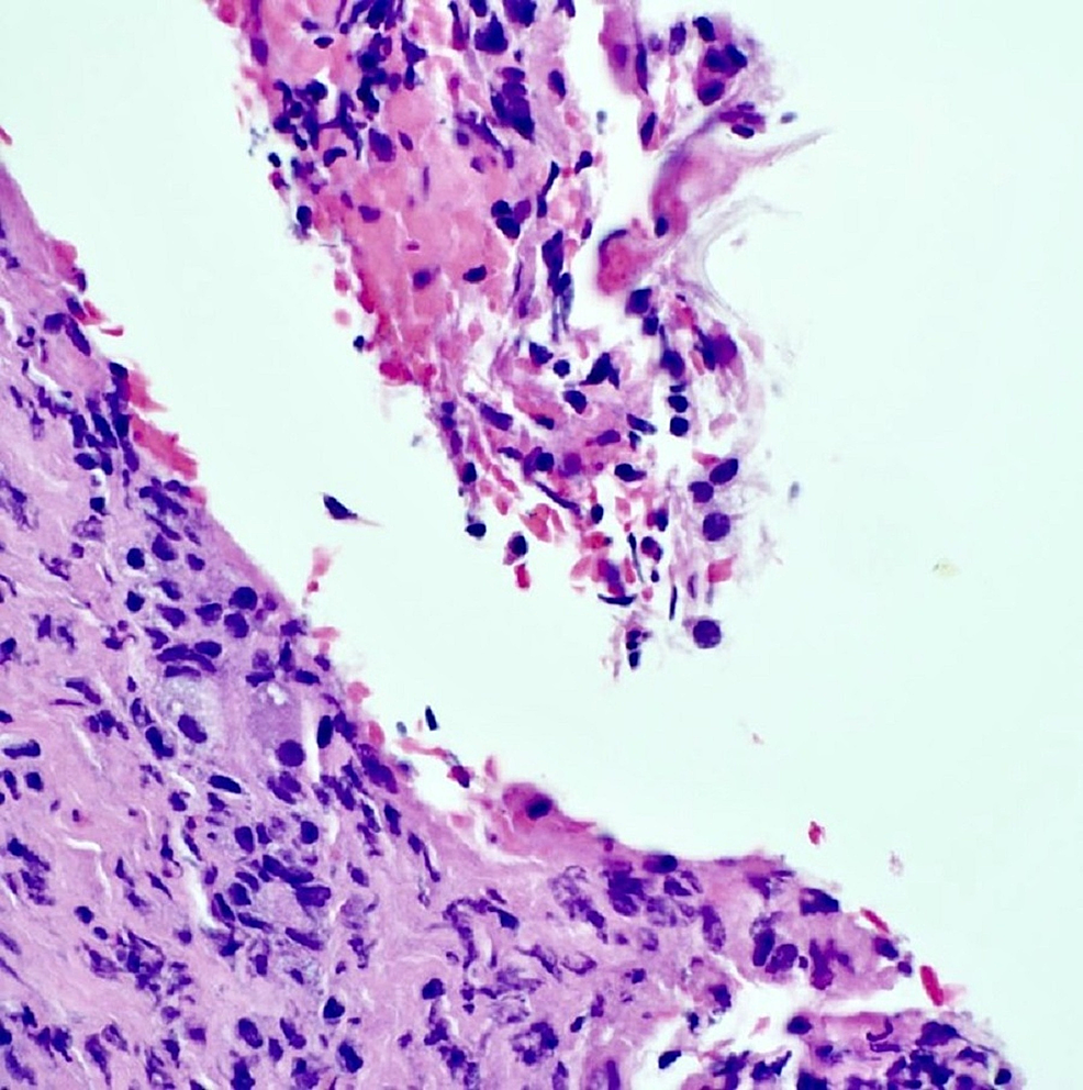Hemotoxylin-and-eosin-staining-of-cyst-contents-showing-keratin-with-surrounding-inflammation