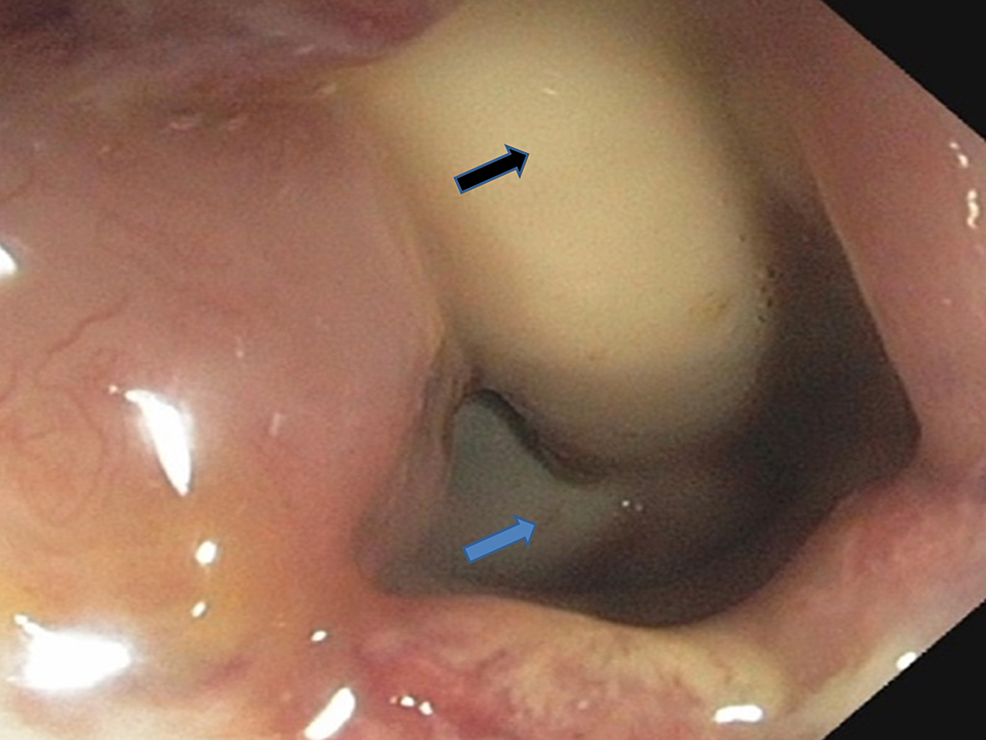 Closer-view-of-the-rectourethral-fistula-with-Foley's-catheter