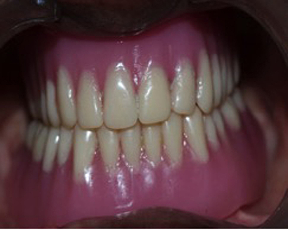 Complete-denture-in-occlusion