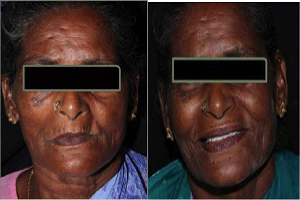 Patient-before-and-after-the-treatment