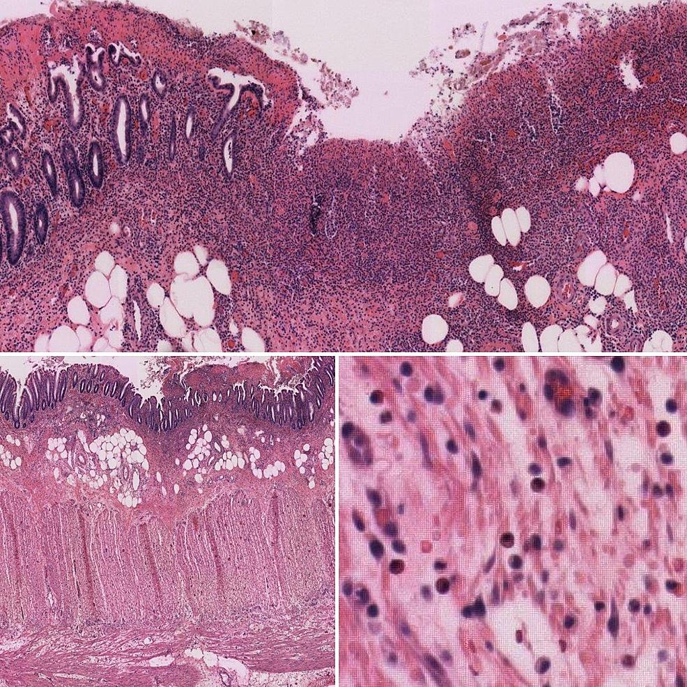 Pathologic-findings