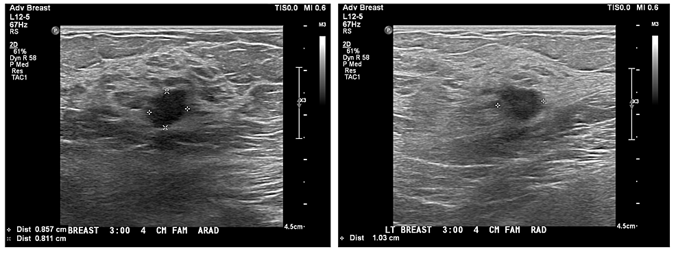 Ultrasound-images-showing-the-sizes-of-the-the-mass-in-the-left-breast