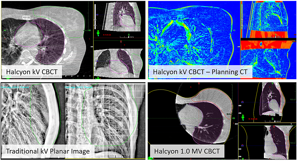 Top-row:-Online-IGRT-with-improved-kV-CBCT-of-tangent-fields-using-the-breast-CBCT-preset.-Overlays-of-the-heart,-ipsilateral-lung,-and-BREAST_PTV-structures-from-the-planning-CT-allow-assessment-of-alignment-quality.-The-image-on-the-right-shows-the-difference-between-planning-CT-and-online-CBCT.-Bottom-row:-Examples-of-breast-localization-with-traditional-kV-planar-image-pair-and-Halcyon-1.0-MV-CBCT