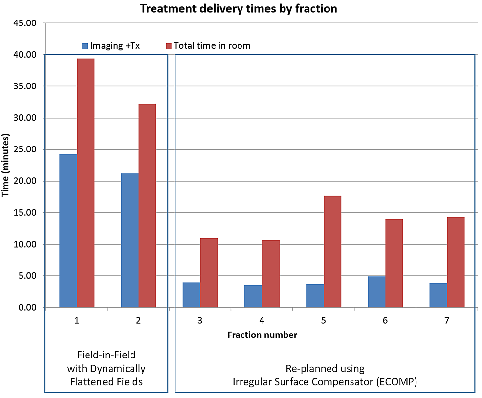 Treatment-delivery-times-by-fraction-for-a-left-sided-breast-cancer-patient-treated-with-DIBH;-planning-techniques-switched-from-DBF-enabled-field-in-field-(fractions-1-and-2)-to-irregular-surface-compensator-(fraction-3-and-onward)-on-the-same-Halcyon-treatment-unit