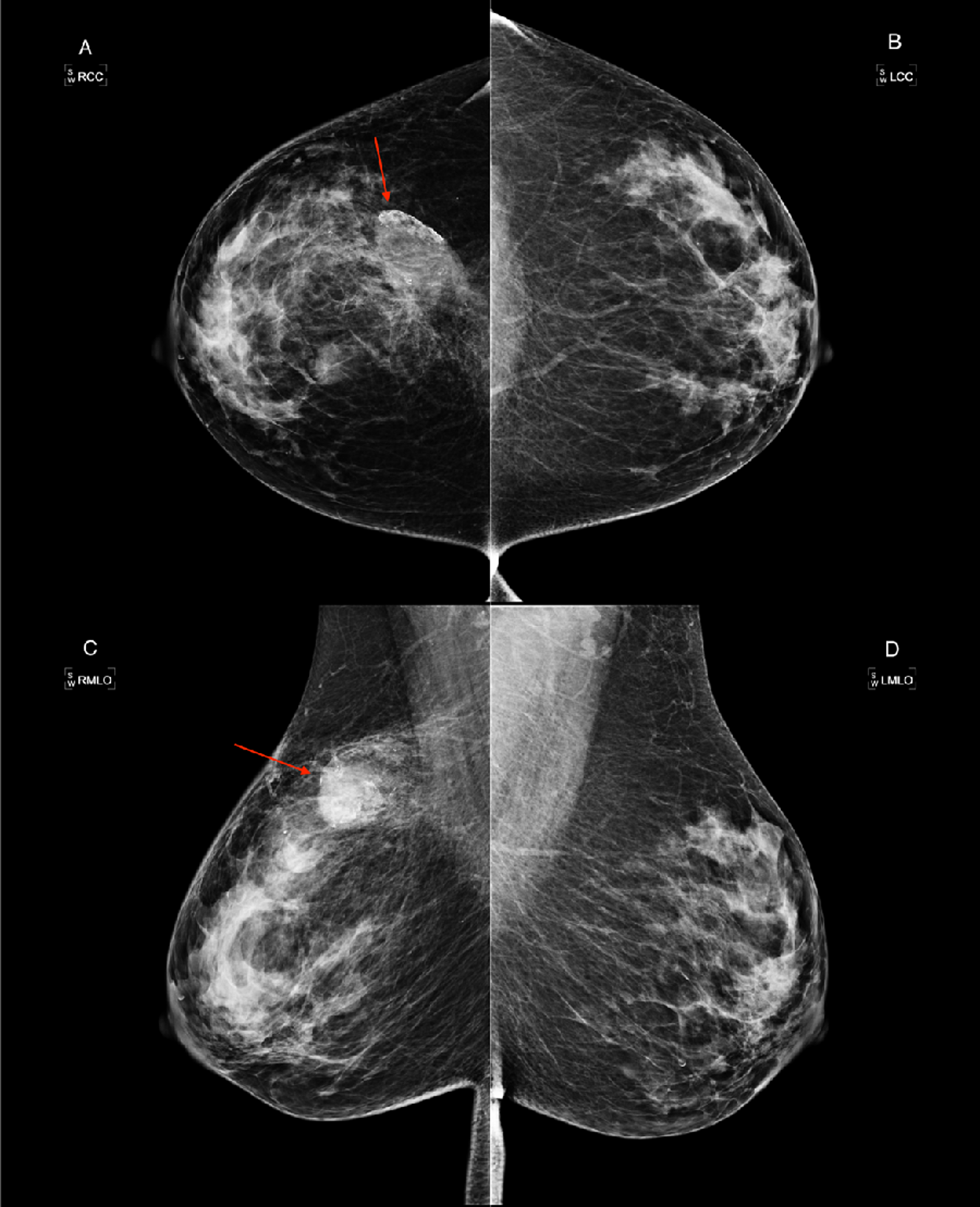 Cureus   Detection of a Mammographically Occult Breast Cancer with a