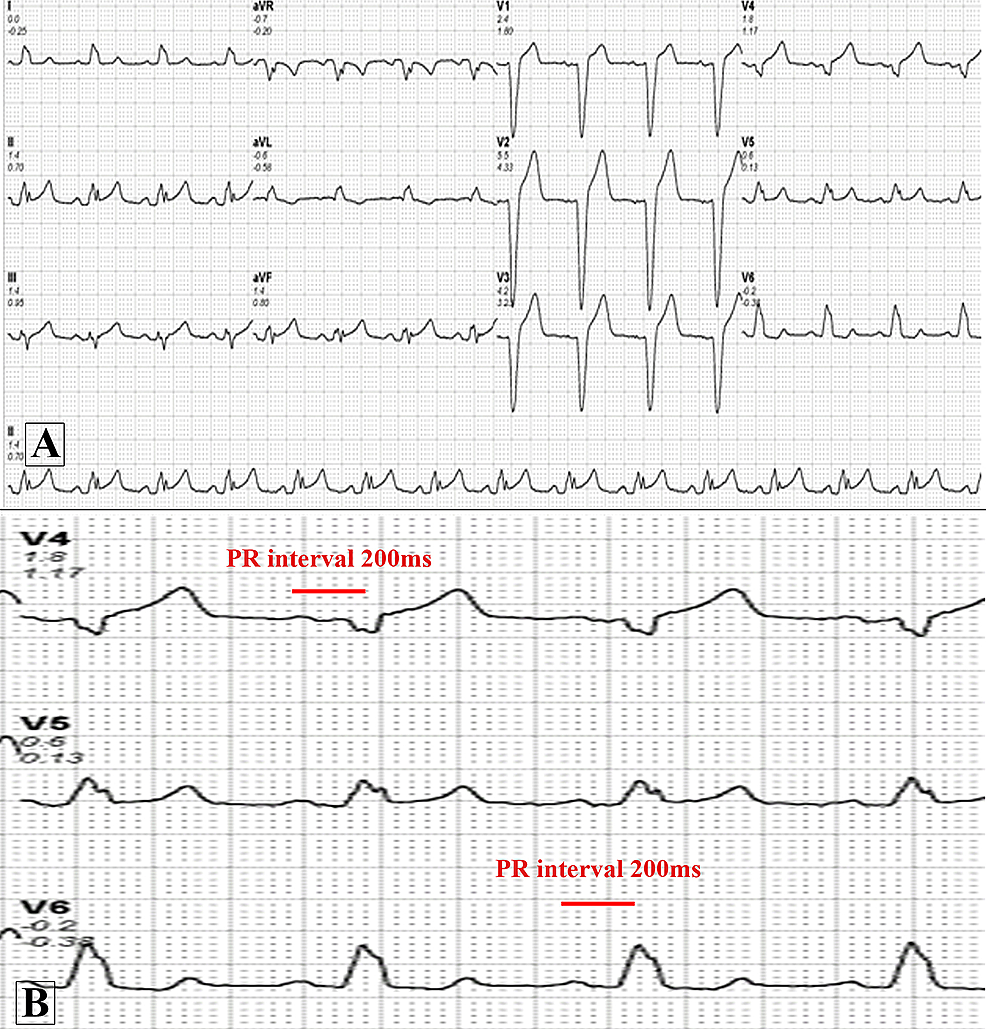 Baseline-electrocardiogram-of-the-patient.