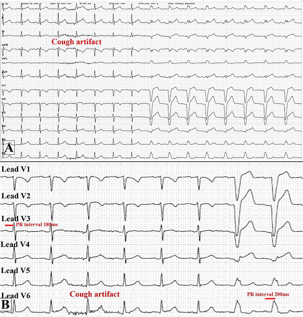 Electrocardiogram-(ECG)-at-the-start-of-the-stress-part-of-the-myocardial-perfusion-scan-before-injecting-IV-dipyradimole.