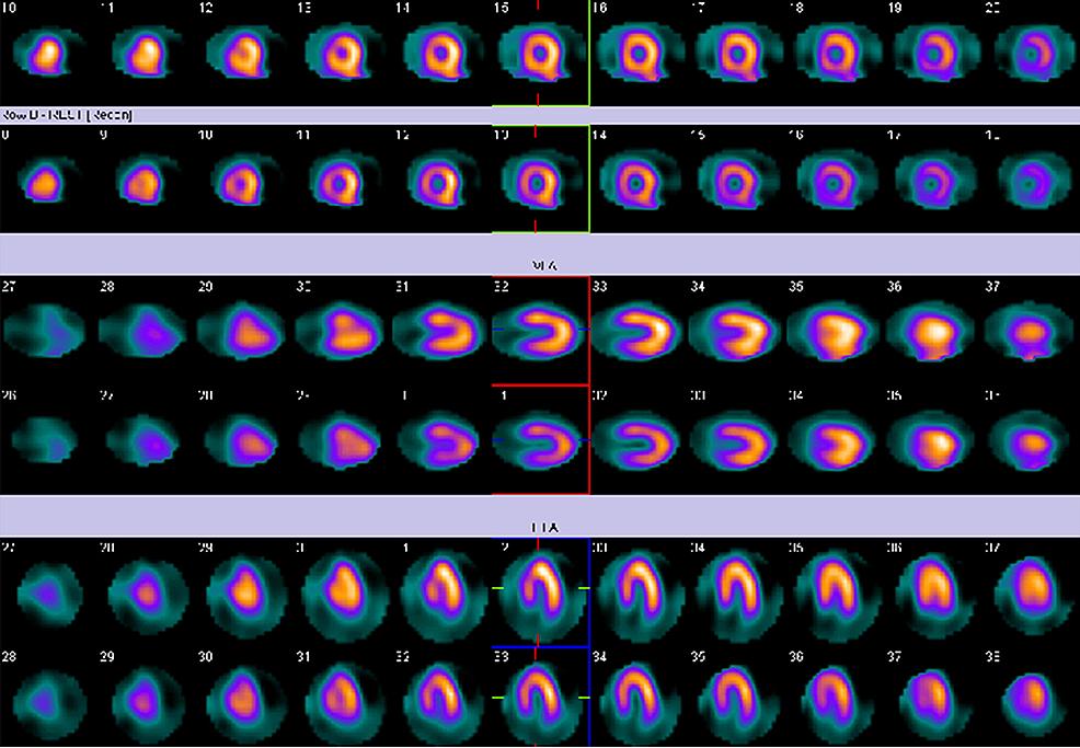 Myocardial-perfusion-imaging.