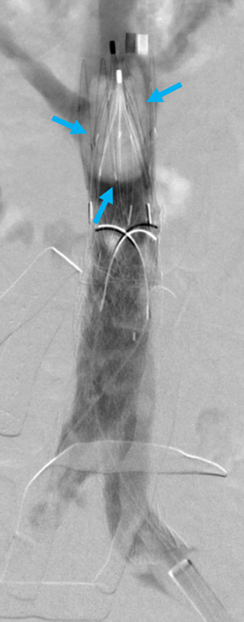 Cavogram-Demonstrating-Thrombus-Formation