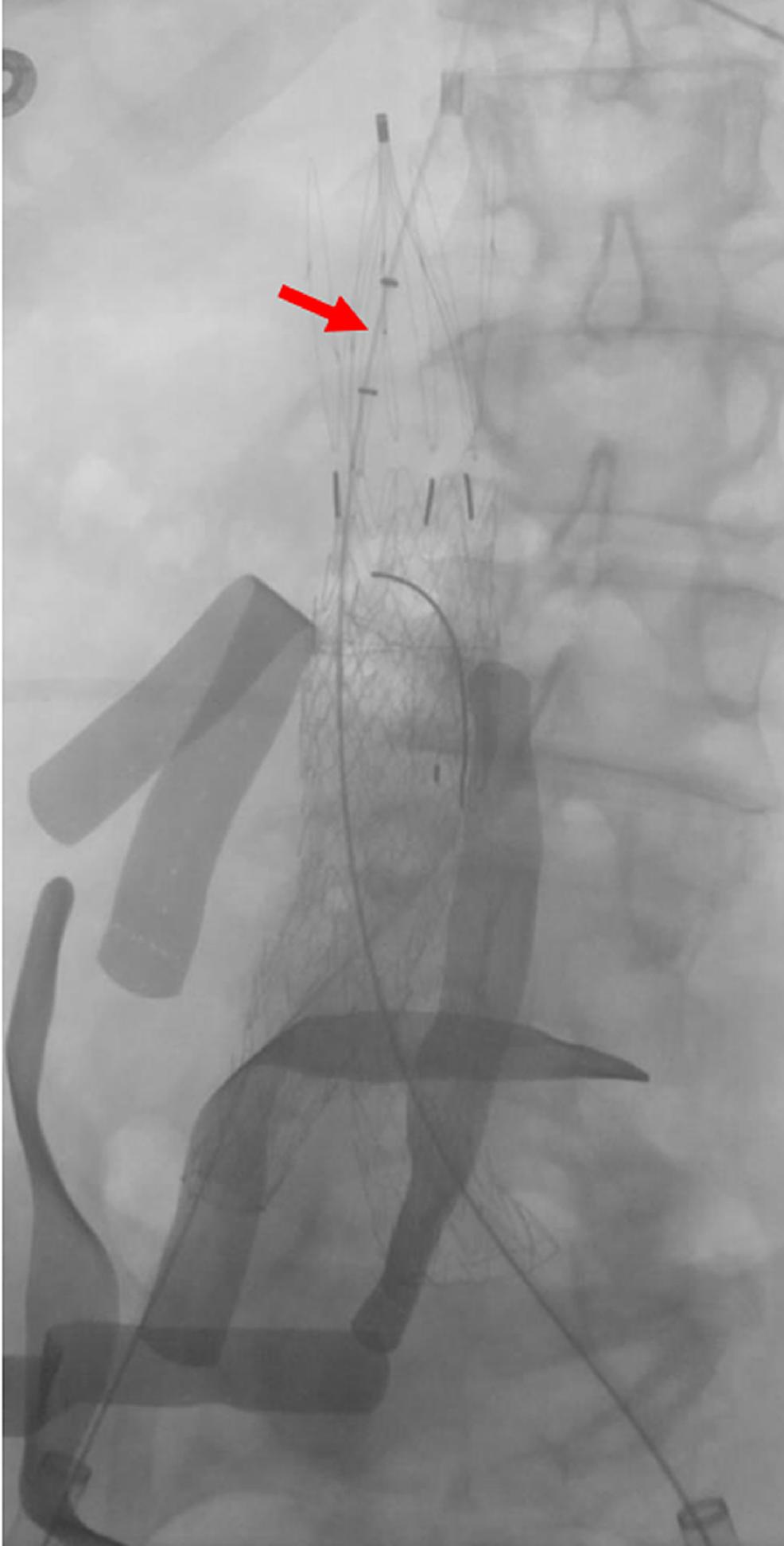 Angiojet®-Thrombectomy-Catheter-Within-the-Inferior-Vena-Cava-Filter