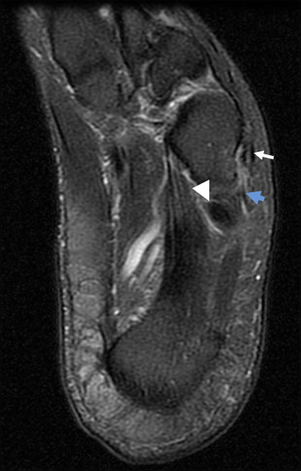 Cureus | Peroneus Tertius Tendon Tear: A Rare Cause of Lateral Ankle ...
