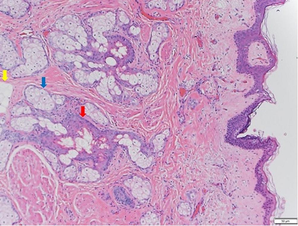 Hematoxylin-and-eosin-(H&E)-stain