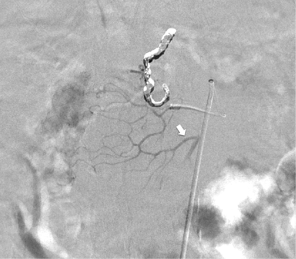 Digital-subtraction-angiography-of-the-posterior-inferior-pancreaticoduodenal-artery.