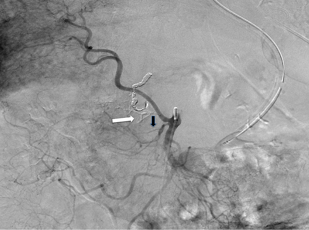 Digital-subtraction-angiography-of-superior-mesenteric-artery.