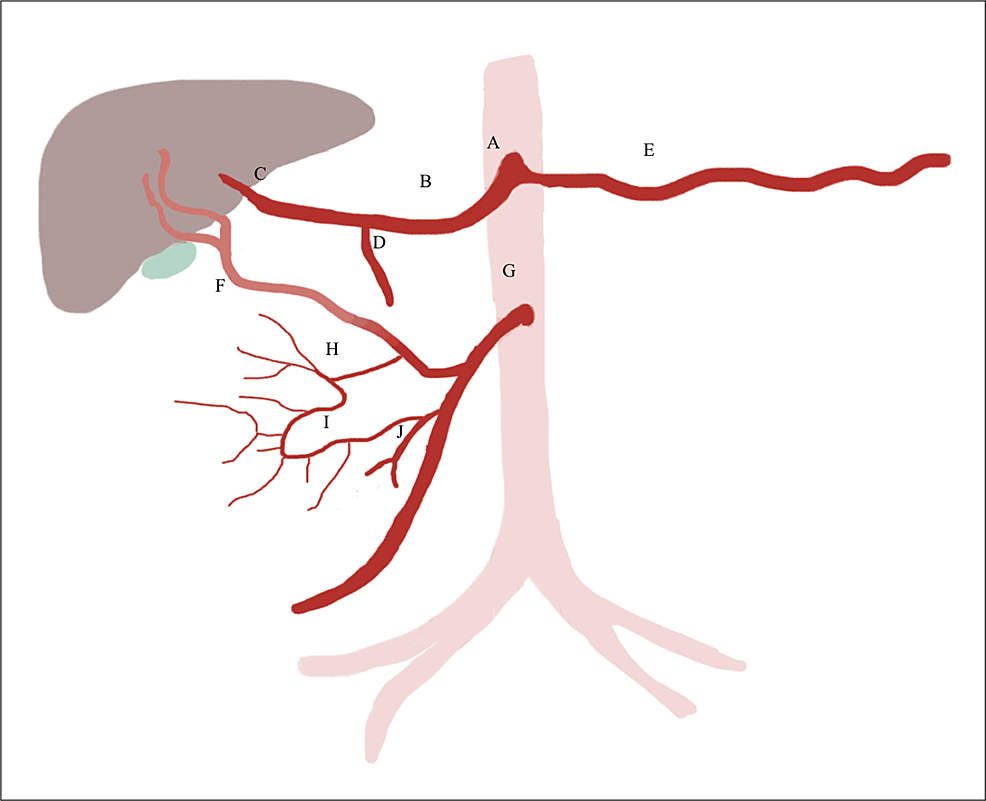 Schematic-demonstrating-newly-described-branching-pattern-(proposed-classification-D)-of-this-aberrant-inferior-pancreaticoduodenal-artery.