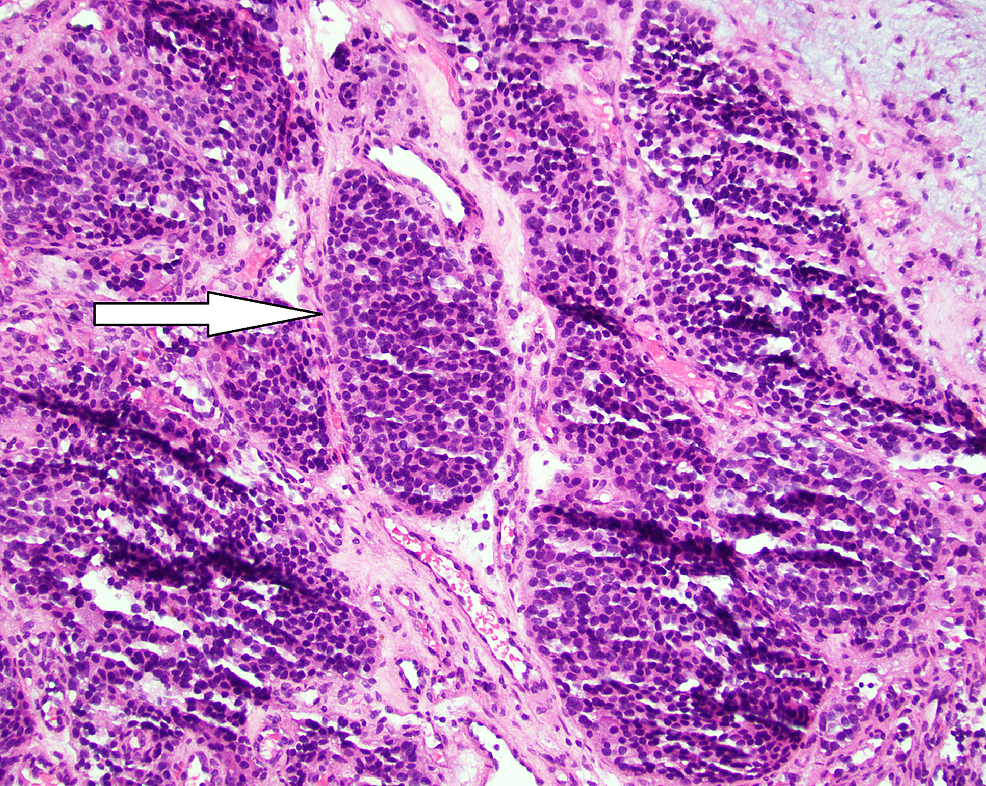 H&E-staining-of-tumor-at-200x-magnification