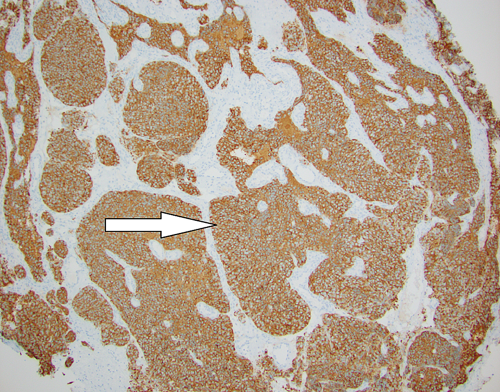 Synaptophysin-stain-of-tumor-at-100x-magnification