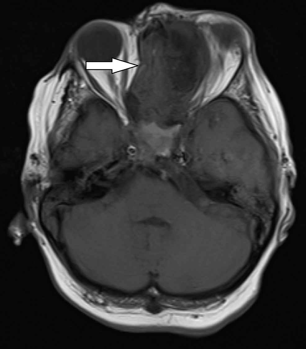 T1-weighted-axial-MRI