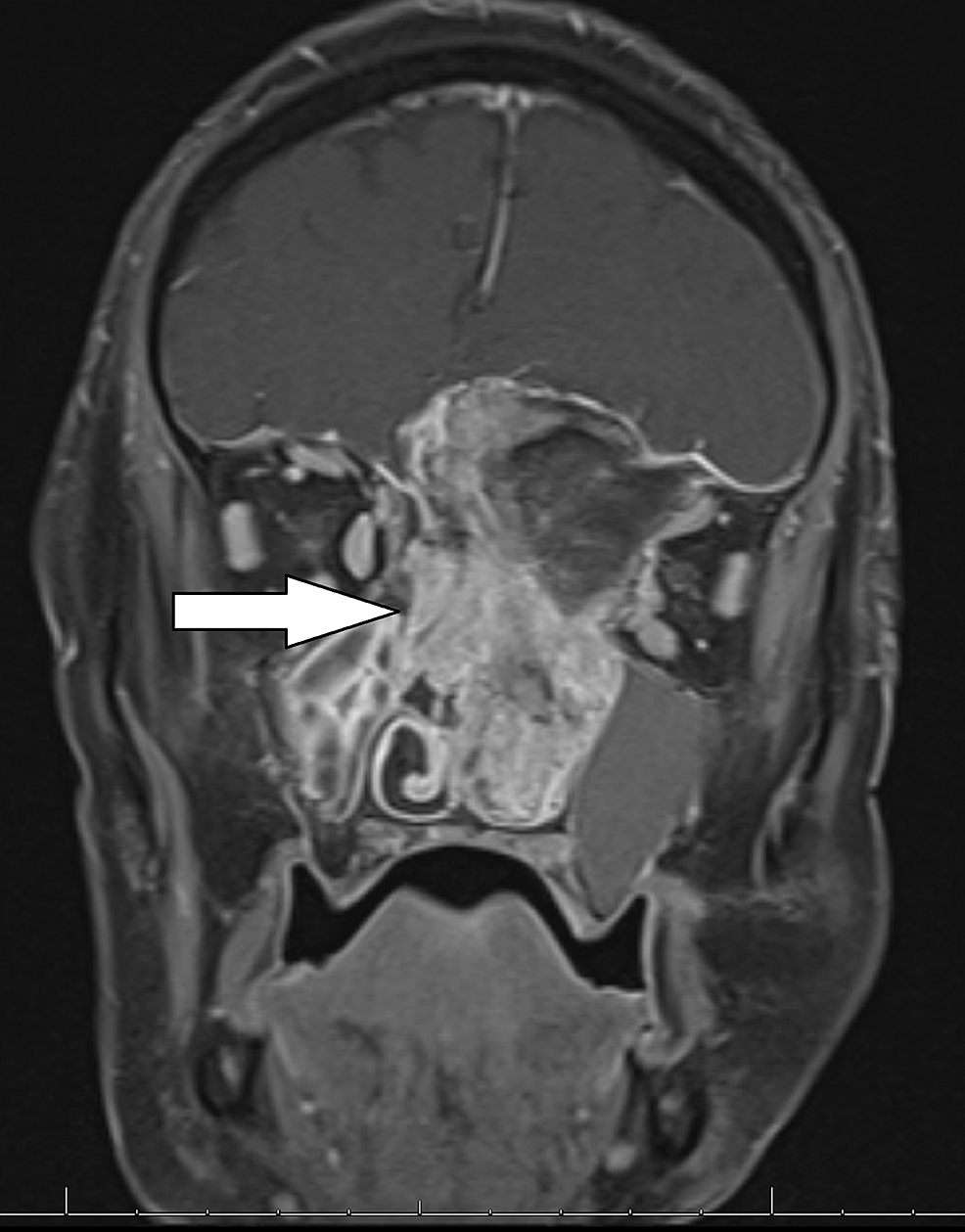 T1-weighted-post-contrast-coronal-MRI