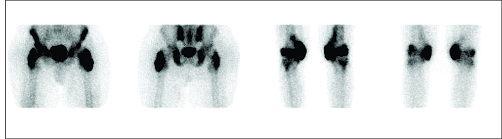 TC-99m-MDP-bone-scintigraphy:-increased-intake-around-both-hips-and-knees