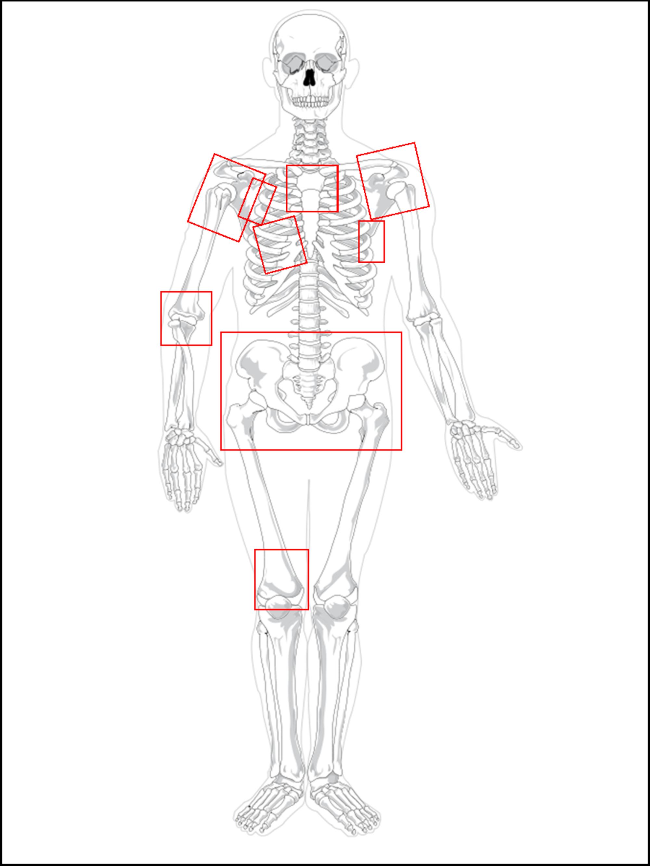 Palliative-radiotherapy-courses