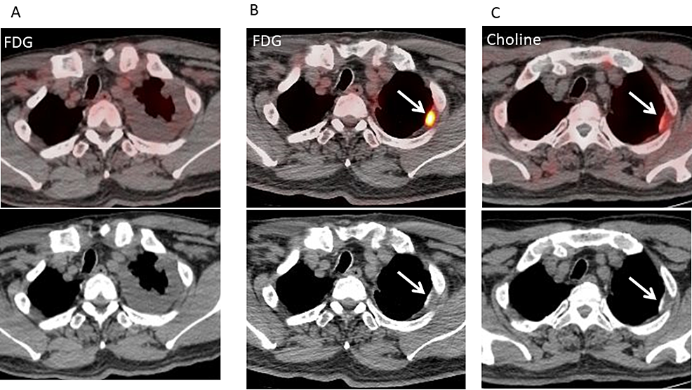 Fluorodeoxyglucose-(FDG)-positron-emission-tomography/computed-tomography-(PET/CT)-before-and-after-talc-pleurodesis-and-neoadjuvant-chemotherapy-(NAC)-and-11C-choline-PET/CT-after-talc-pleurodesis-and-NAC-for-patient-1.