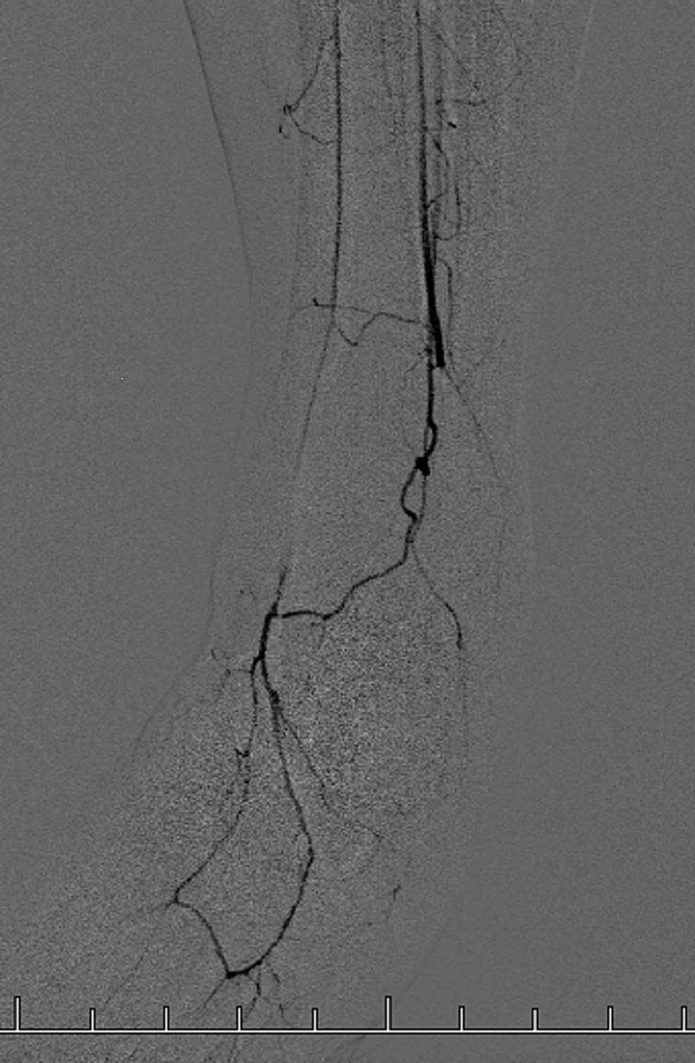 Left-Lower-Extremity-Angiography