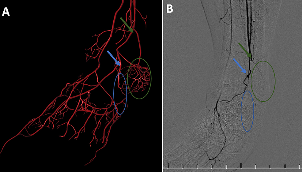 Left-Lower-Extremity-Angiography-Compared-to-Computer-generated-Vasculature